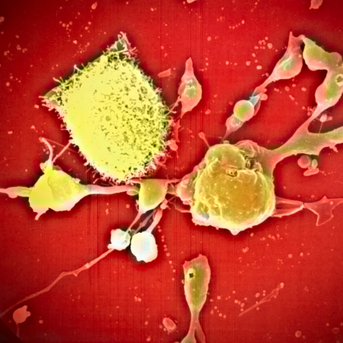 Scanning electron micrograph of SkBr-3 breast cancer cells undergoing apoptosis upon treatment with anticancer agent. Credit : J Stanslas